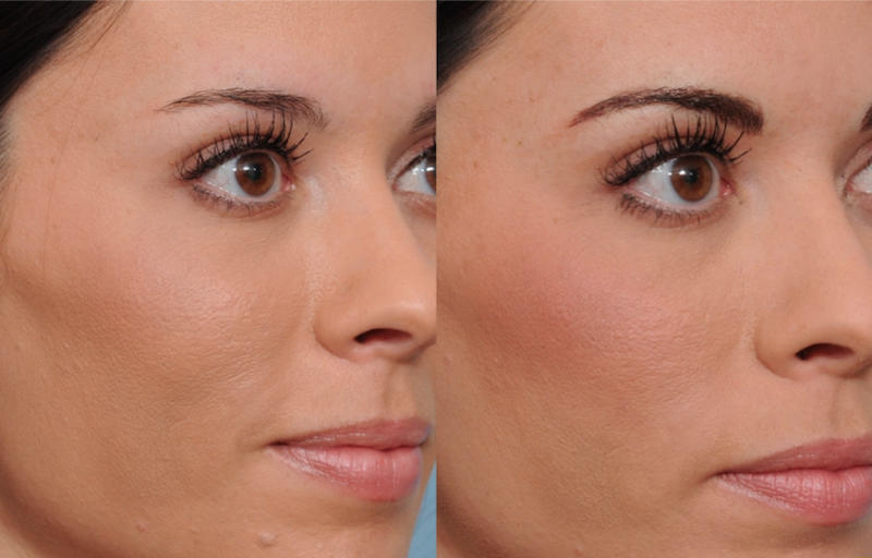 Permanent Makeup and Microblading Philadelphia Ardmore
